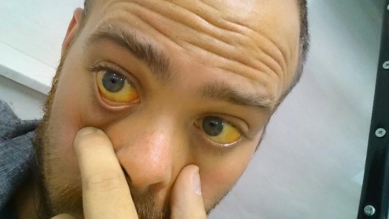 Желтушность кожного покрова и слизистых, в том числе склер глаз