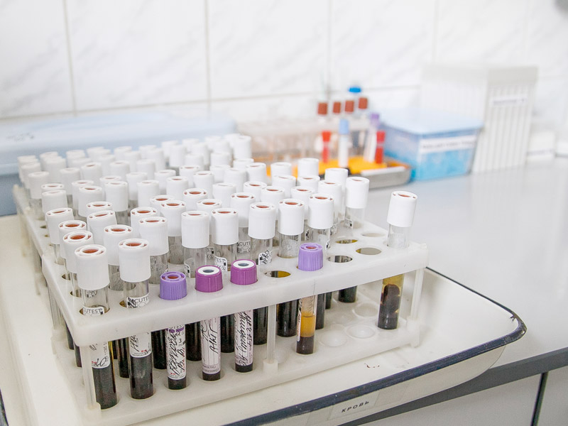 Для скорейшего лечения панкреатита необходимо сдать анализы