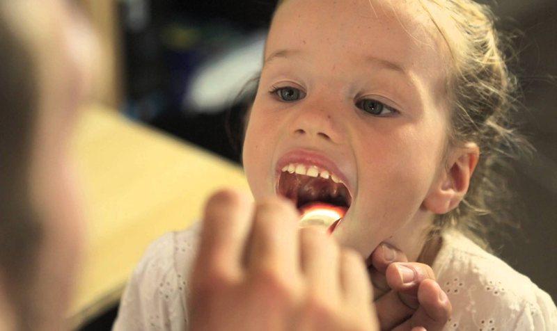 Белый налет на языке - один из симптомов панкреатита