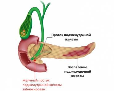 Билиарнозависимая форма панкреатита