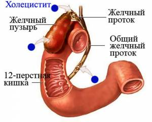 Одна из причин панкреатита - холецистит