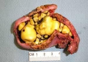 Камни в желчном пузыре приводят к воспалению, которое, в свою очередь, к панкреатиту