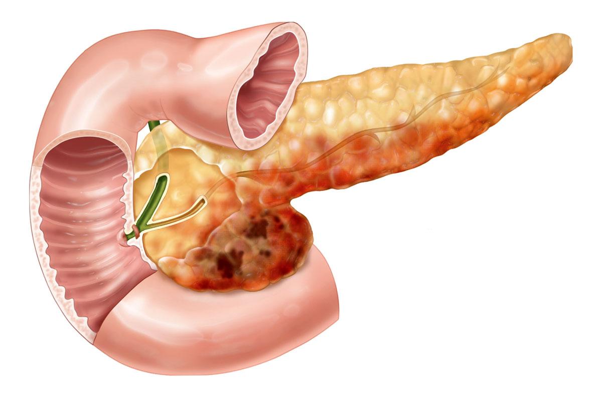 При хроническом панкреатите отсутствие симптомов может означать и осложнения, при которых пациент также не чувствует боль