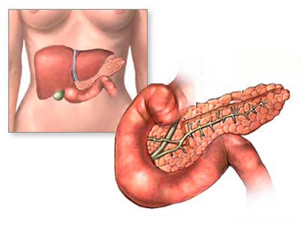 Одним из осложнений острого панкреатита является хронический паренхиматозный панкреатит