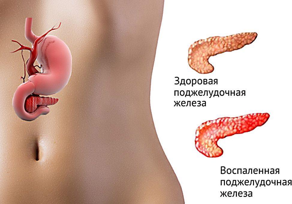 Отличие здоровой от пораженной поджелудочной железы