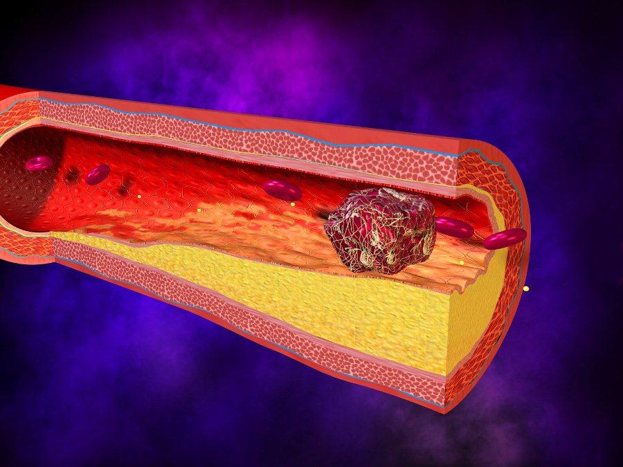 При раке поджелудочной железы возникает тромбофлебит